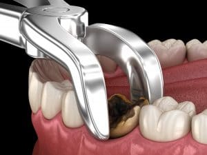extracting infected tooth