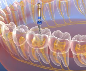 bedford root canal procedure
