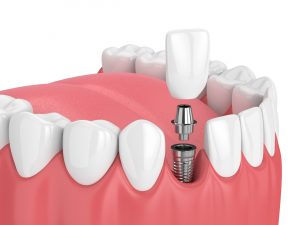 bedford dental implant placement
