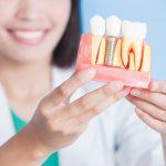 bedford dental implants